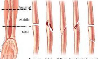 Що робити при переломах, при травматичному шоці