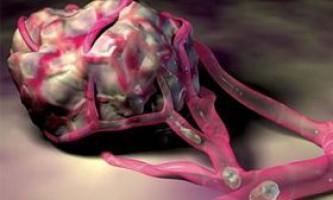 Методи лікування злоякісних пухлин