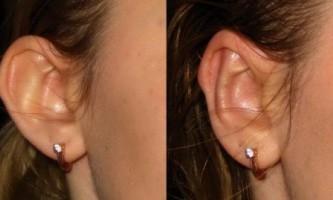 Операція отопластика допоможе змінити форму вух